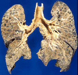 Emphysema-damaged lungs caused by smoking Photo credit: Yale Rosen